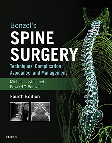 Buy Spine Surgery Now!