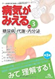 病気がみえる 〈vol.3〉 糖尿病・代謝・内分泌 (Medical Disease:An Illustrated Reference)
