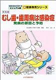 むし歯・歯周病は感染症―発病の原因と予防 (写真を見ながら学べるビジュアル版新健康教育シリーズ)