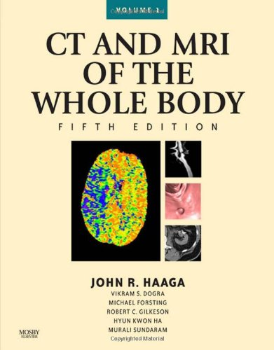 CT and MRI of the Whole Body, 2-Volume Set, 5e (Computed...