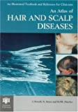 515FTWGVK3L. SL160  An Atlas of Hair and Scalp Diseases