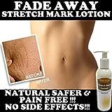 Fade Away Stretch Mark Die besten Cremes für Dehnungsstreifen