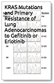 KRAS Mutations and Primary Resistance of Lung Adenocarcinomas to Gefitinib or Erlotinib