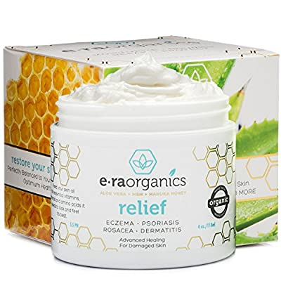 Psoriasis & Eczema Cream 4oz Advanced Healing Non-Greasy Moisturizer with Organic Aloe Vera, Manuka Honey, Hemp Oil & More. Best Natural Moisturizer for Dermatitis, Rosacea, Shingles, Dry, Itchy Skin