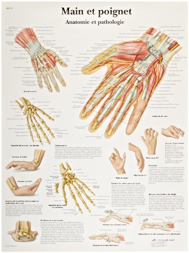 3B Scientific Glossy Paper Hand and Wrist Anatomy and Pathology Chart - 1