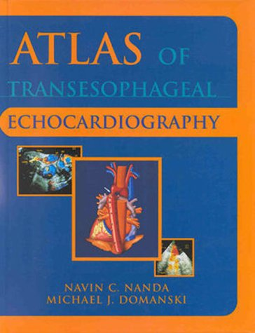 Atlas of Transesophageal Echocardiography