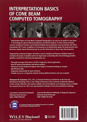 Interpretation Basics of Cone Beam Computed Tomography
