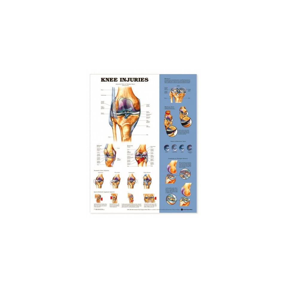 Knee Injuries Anatomical Chart Unmounted-9872PU