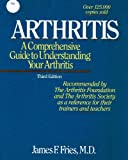 Arthritis: A comprehensive guide to understanding your arthritis