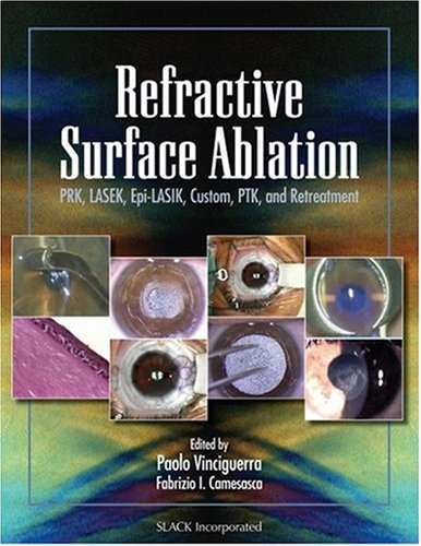 Refractive Surface Ablation: Prk, Lasek, Epi-Lasik, Custom, Ptk, And Retreatment