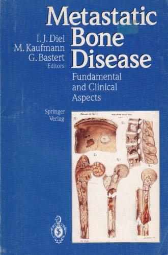 Metastatic Bone Disease: Fundamental and Clinical Aspects