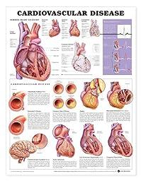 Cardiovascular Disease Anatomical Chart 20\