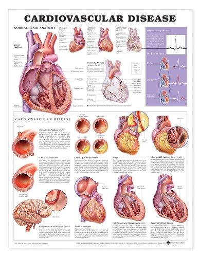 Cardiovascular Disease Anatomical Chart - 1