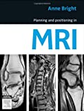 Planning and Positioning in MRI, 1e