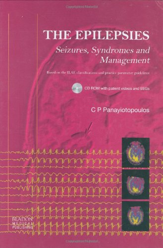 The Epilepsies: Seizures, Syndromes and Management