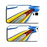 Stent angioplasty procedure with placing a balloon cell phone cover case Samsung S5
