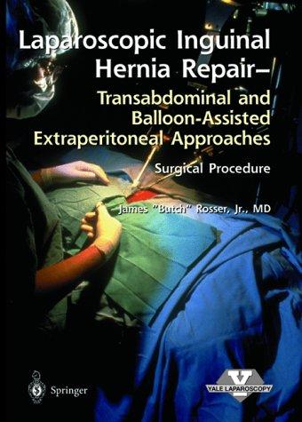 Laparoscopic Inguinal Hernia Repair (Laproscopic Surgical Technique)