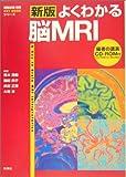 新版 よくわかる脳MRI (『画像診断』別冊KEY BOOKシリーズ)