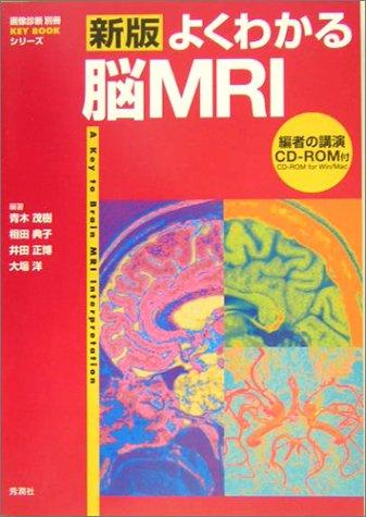 新版 よくわかる脳MRI