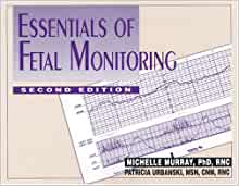 Essentials of Fetal Monitoring: 9780826115263: Medicine