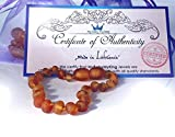 Amber-Teething-Bracelet-for-Baby-Cognac-Color-100-Natural-Baltic-Amber-Baroque-Style-Round-Raw-Beads-55-in-Long