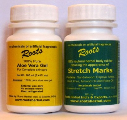 Stretch Marks -- Treatment, Prevention, Remedy, Removal and Cure for Stretch Marks, Pregnancy Stretchmarks and Stretch Marks Due to Weight Loss