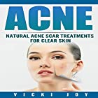 Acne: Natural Acne Scar Treatments for Clear Skin Hörbuch von Vicki Joy Gesprochen von: Felicia Shaviri