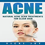 Acne: Natural Acne Scar Treatments for Clear Skin | Vicki Joy