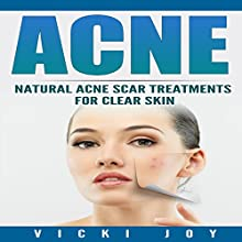 Acne: Natural Acne Scar Treatments for Clear Skin Audiobook by Vicki Joy Narrated by Felicia Shaviri