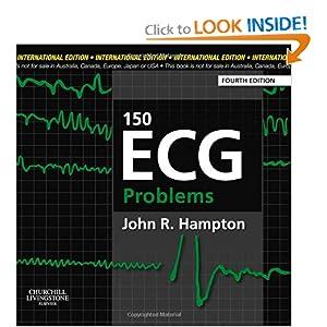 150 ECG Problems, IE