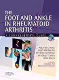 img - for The Foot and Ankle in Rheumatoid Arthritis: A Comprehensive Guide, 1e book / textbook / text book