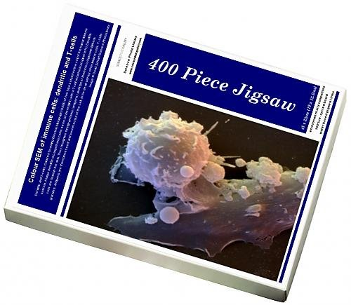 photo-jigsaw-puzzle-of-colour-sem-of-immune-cells-dendritic-and-t-cells