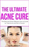 The Ultimate Acne Cure - The Best and Most Effective How to Guide to Treat Acne and Rid it Forever (acne no more, acne treatment, acne scar, acne cure, acne remedies, acne diet, pimples)