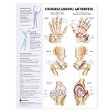 Arthritis Joint Inflammation Chart