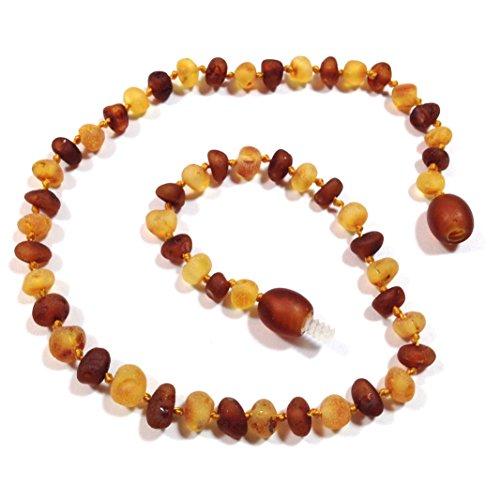 "Hazelaid (TM) 12"" Pop-Clasp Baltic Amber Nutmeg & Lemondrop Necklace"