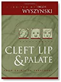 Cleft Lip and Palate: From Origin to Treatment