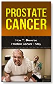Prostate Cancer: How To Survive Reverse Prostate Cancer Today (FREE CHECKLIST) (Prostate Cancer,Prostate Health, Cancer, Prostate Cancer Diet, Prostate Cancer Books, Prostate Cancer Breakthroughs)