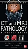 CT & MRI Pathology: A Pocket Atlas, Second Edition (0071703195) by Grey, Michael