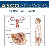 Cervical Cancer Fact Sheet (pack of 125 fact sheets)