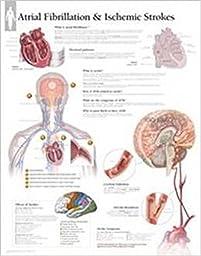 Atrial Fib & Ischemic Strokes Wall Chart
