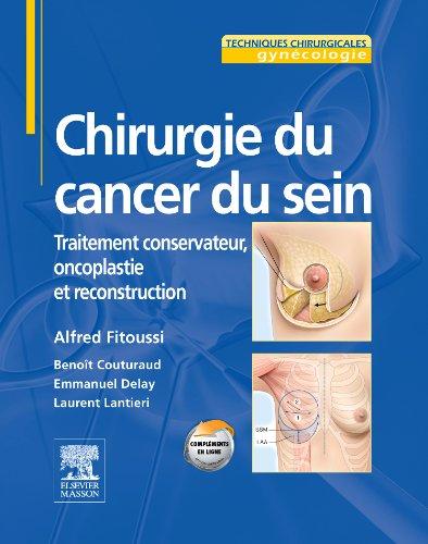 chirurgie-du-cancer-du-sein-traitement-conservateur-oncoplastie-et-reconstruction