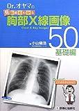 Drオヤマの見る読むわかる胸部X線画像50 基礎編