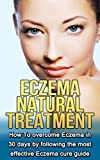 Eczema  Natural Treatment: How To overcome Eczema in 30 days by following the most effective Eczema cure guide (Eczema cure, Eczema diet, Eczema free)