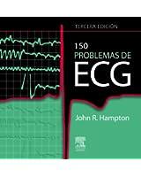 150 problemas de ECG: --