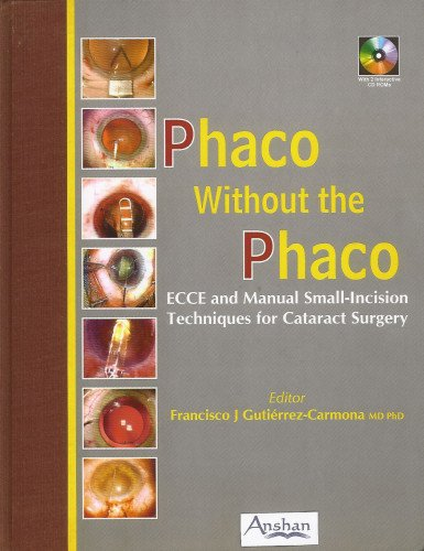 Phaco Without the Phaco: ECCE and Manual Small-Incision Techniques for Cataract Surgery