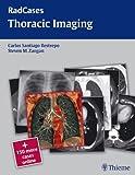 Thoracic Imaging (Radcases)