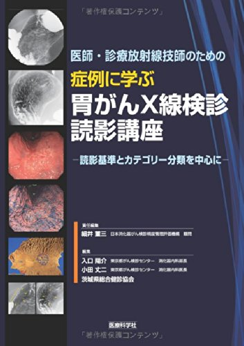 医師・診療放射線技師のための 症例に学ぶ胃がんX線検診読影講座 ─読影基準とカテゴリー分類を中心に