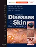 img - for Andrews' Diseases of the Skin: Clinical Dermatology - Expert Consult - Online and Print, 11e (James, Andrew's Disease of the Skin) book / textbook / text book