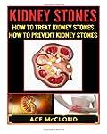 Kidney Stones: How to Treat Kidney St...