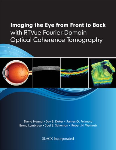 Imaging The Eye From Front To Back With Rtvue Fourier-Domain Optical Coherence Tomogaphy